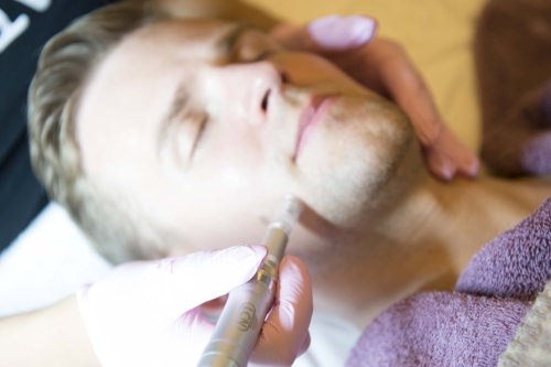 Microneedling Hannover